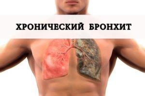 Хронический бронхит – это длительное воспаление бронхов