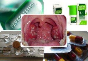 Ангина – инфекционное заболевание, характеризующееся воспалением небных миндалин