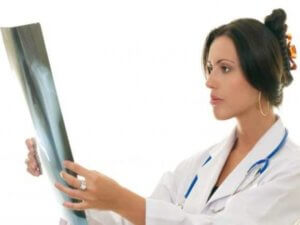Рентген легких назначают при подозрении пневмонии