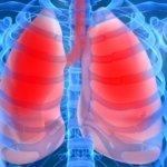 Плеврит – это воспаление плевральных лепестков легких