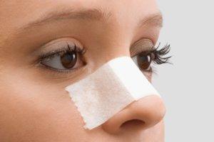 Септопластика – эффективный и распространенный метод лечения кривой перегородки носа