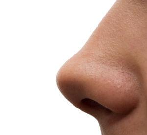 Кривая перегородка носа может быть врожденная и приобретенная