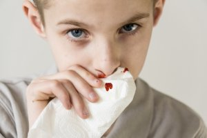 Заболевания ЛОР-органов могут стать причиной частых носовых кровотечений у детей
