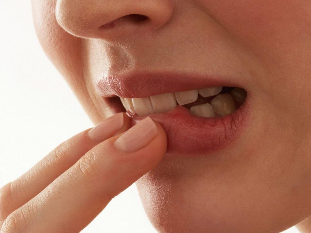 Грибок полости рта: основные признаки и способы лечения кандидоза