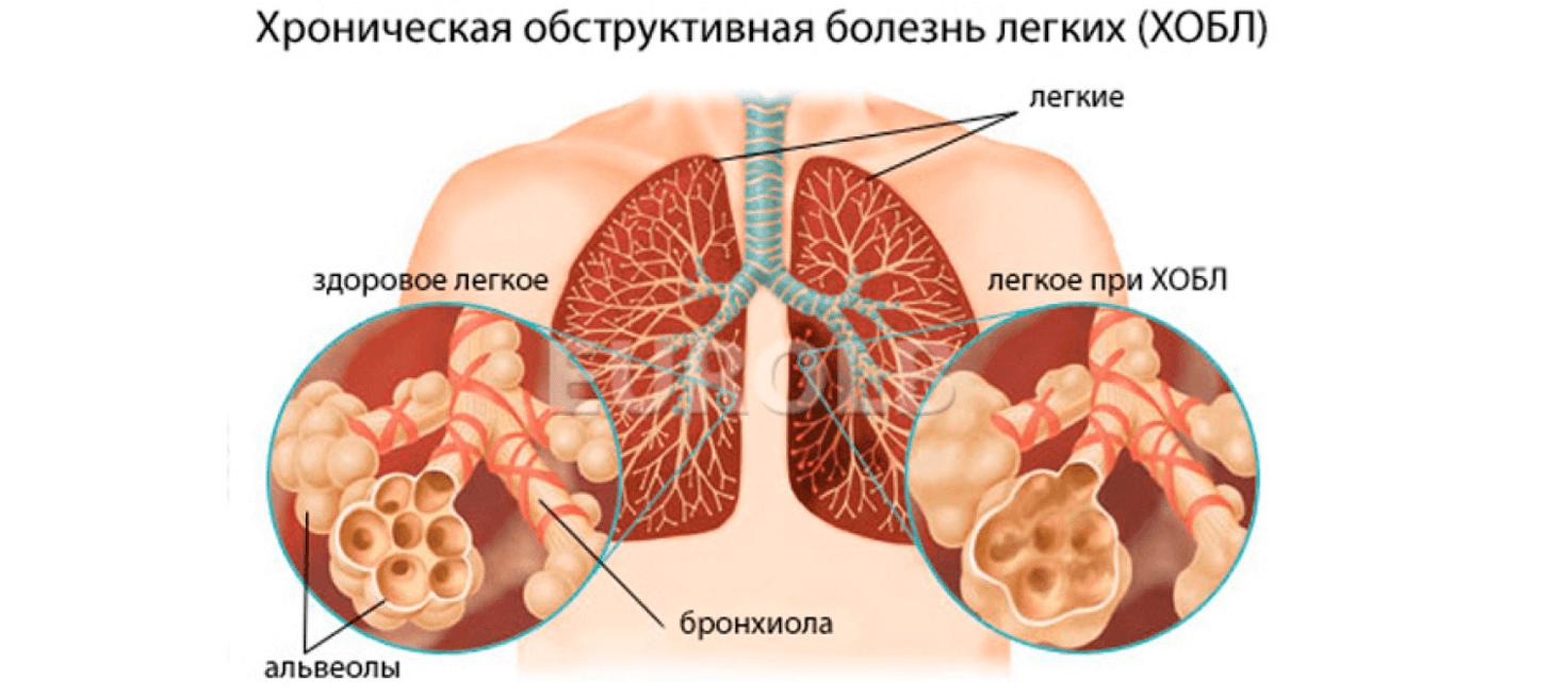 Обструктивный бронхит — лечение болезни у взрослых