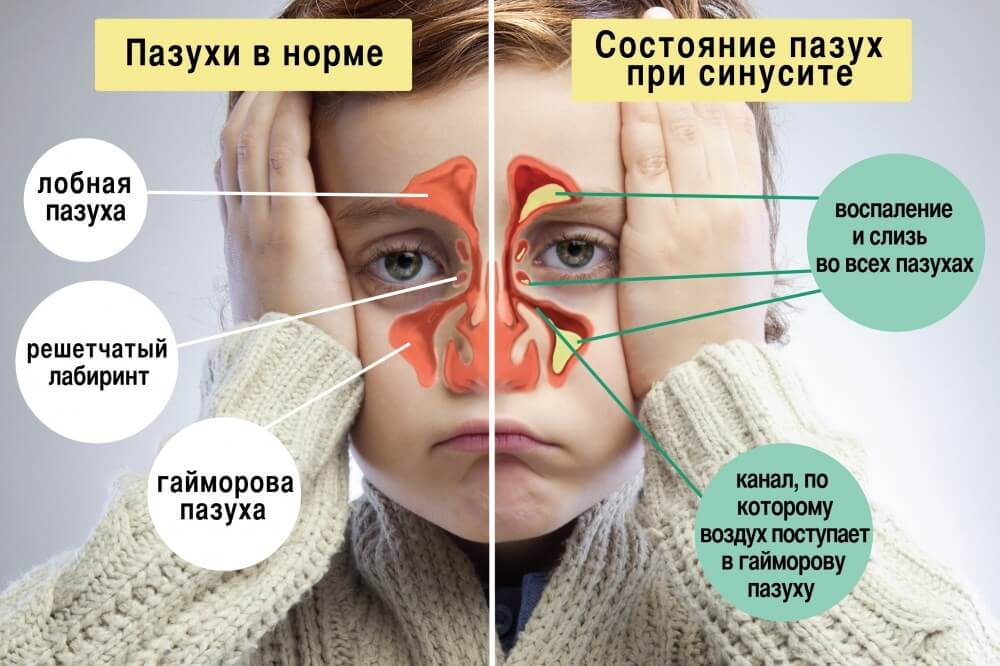 Заболевание пазух