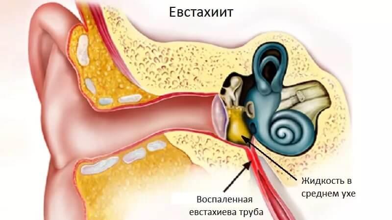 Что такое евстахиит и как его лечить?