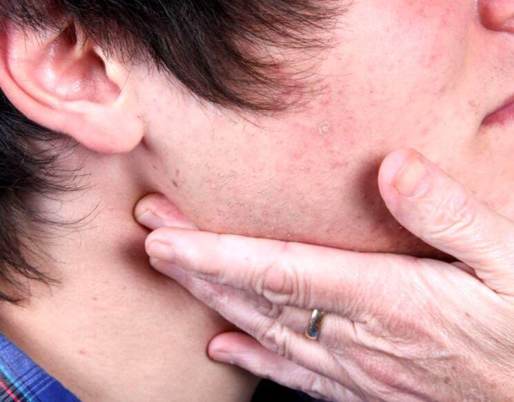 Как долго проходят воспаленные лимфоузлы на шее, почему это важно знать
